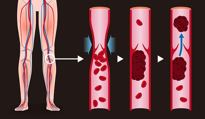 Trombose Venosa Profunda representa um risco grave à saúde vascular